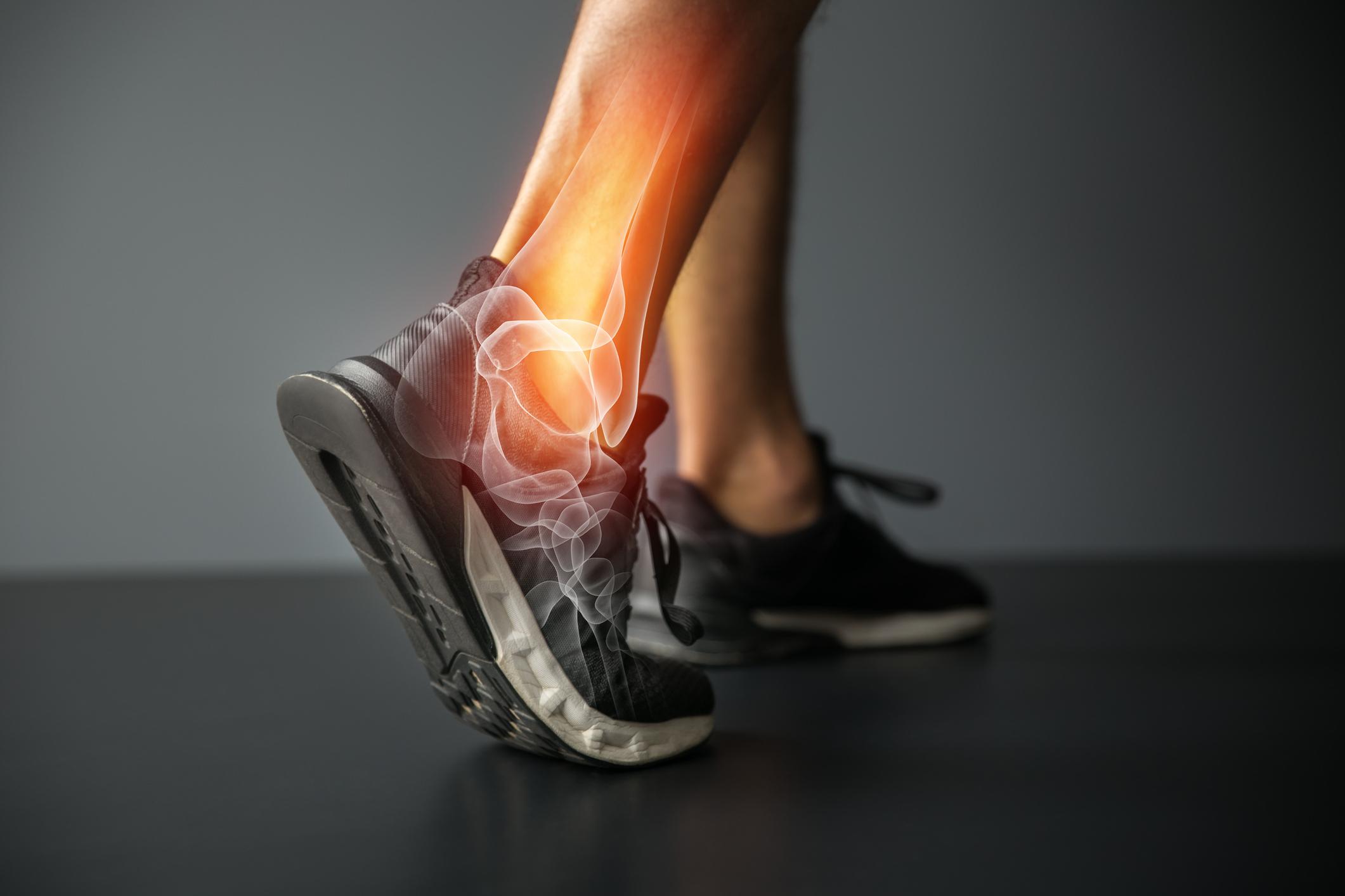 fce2564d7f0 En av sportens stora baksidor är skadedrabbningar på såväl professionella  idrottare som vanliga motionärer. Hur många gånger har man inte satt upp  ett mål ...